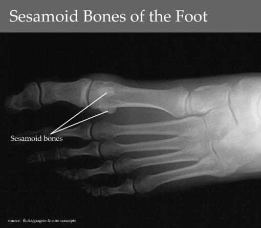 sesamoid_foot